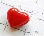 Researchers provide a list of genes implicated in congenital heart disease
