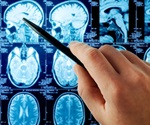 Mass spectrometry: Important analytical tool to understand Huntington's disease proteome