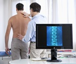 Less addictive opioid may have the ability to slow progression of osteoarthritis