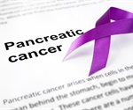 Researchers identify way to disrupt the process that promotes pancreatic tumor growth