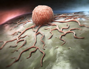 New method could more sensitively detect circulating tumor cells