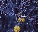 Researchers identify how certain gene mutations cause ALS