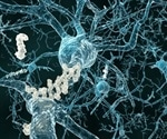 First-in-human clinical trial to test safety, efficacy of gene therapy for Alzheimer's disease
