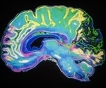 Novel computational approach helps find genetic causes of severe childhood brain disorders