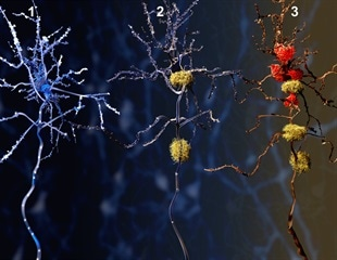 Study reveals the first look of brains retrieving faulty memories
