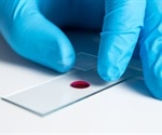 Mice infused with CD5-deleted CAR T cells showed significant reduction in tumor size