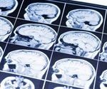 New link found between impaired brain energy metabolism and delirium