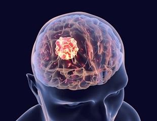 Study elucidates genes responsible for Glioblastoma invasiveness