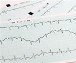 Researchers use zebrafish to identify role of gene involved in cardiac rhythm