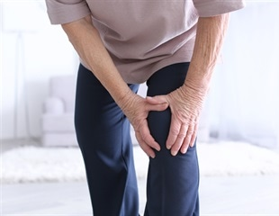 3D biomaterial helps implanted stem cells stick around to reverse arthritis