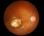 A new approach to combat drug resistance in aggressive age-related macular degeneration