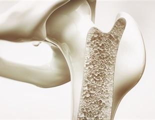 Longitudinal study identifies many genetic markers linked to bone mineral accrual