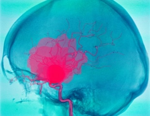 New method can enable early detection and treatment of cerebral aneurysms