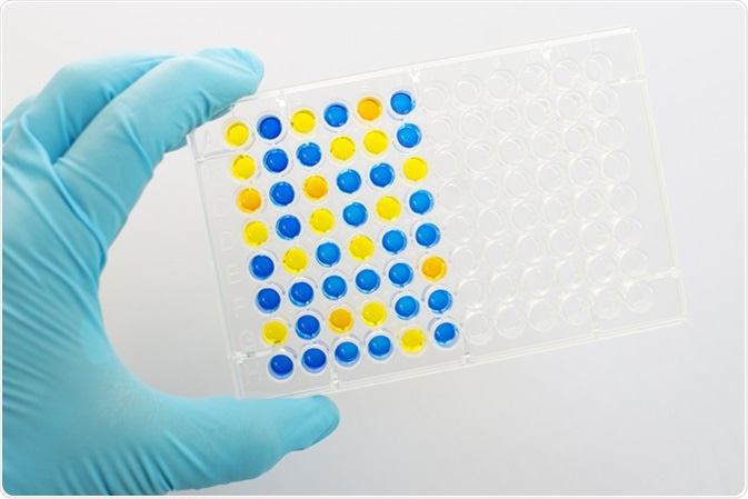 Enzyme-linked immunosorbent assay (ELISA), Immunology testing method in 96 wells microplate. Image Credit: Jarun Ontakrai / Shutterstock