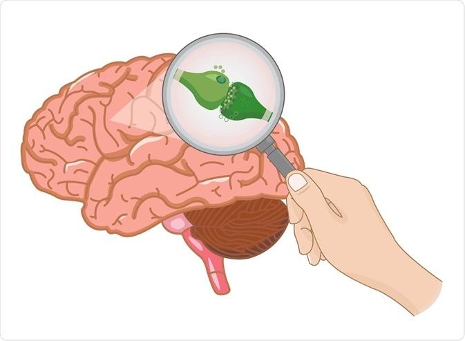 Lens into the brain