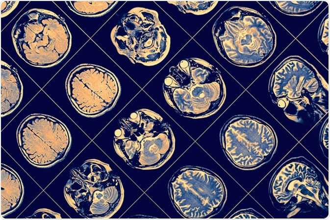 NMR image of human brain. Image Credit: sfam_photo / Shutterstock