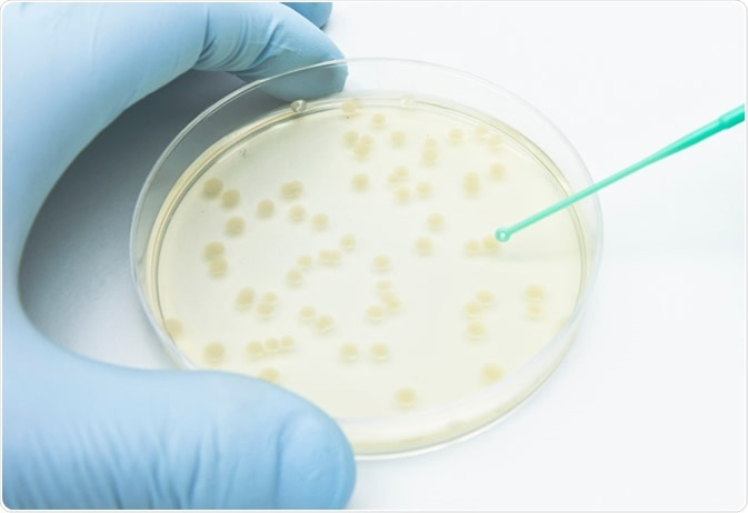 A researcher picking up bacterial colonies on the agar plate using a disposable loop. Image Credit: unoL / Shutterstock