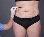 Bariatric surgery may change gene expression in fat tissue