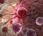 Researchers identify a promising target for treating chemo-resistant cancer cells