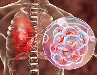 Gaining new insights into bacterial pneumonia