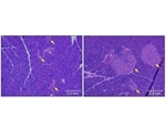 Researchers identify new therapeutic target to treat type 1 diabetes
