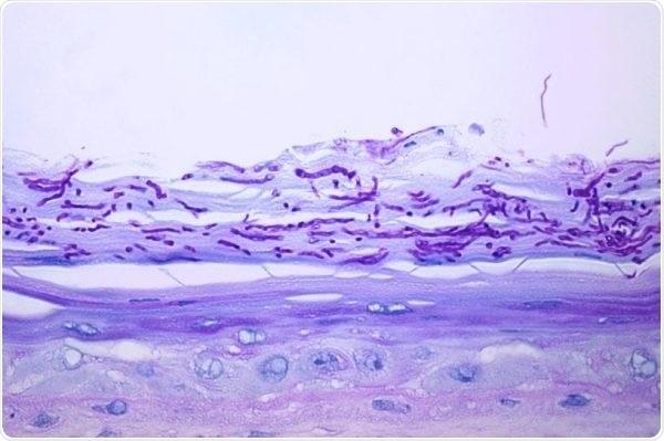 Dermatophytes (T. rubrum)—Antifungal effect in colonization of Labskin by Dermatophytes.