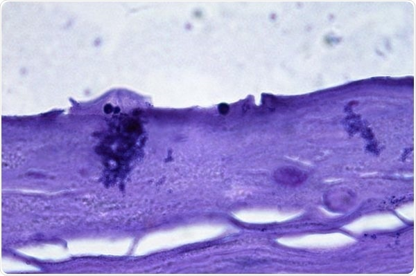 Malassezia globosa + Commensal Microflora—Antidandruff effect in colonization of Labskin with Malassezia and a commensal microbial consortium.