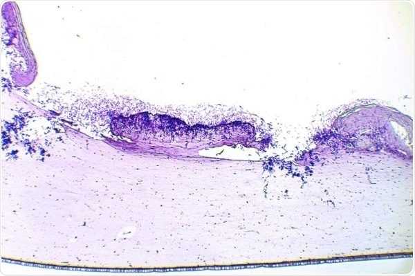 Wounds—Antiseptic/antimicrobial testing in wounds colonized by interkingdom biofilms (S. aureus + C. albicans).