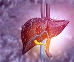 Liver Disease Biomarkers