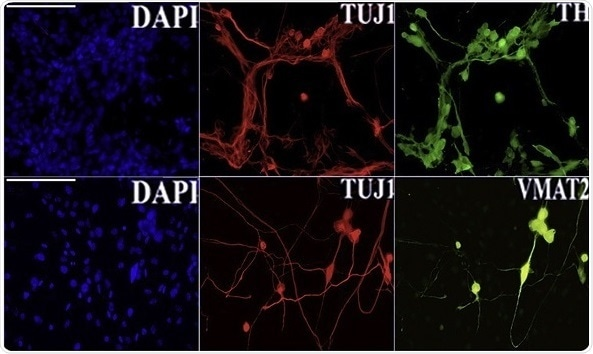 Researchers engineer skin cells into brain cells for effective regenerative therapies