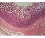 Multi-tissue model shows how different tissues account for various inflammatory diseases