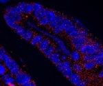 Role of MCL1 in maintaining intestinal homeostasis