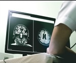 Neuroprotective Drugs: Future Developments in Treating Vascular Dementia