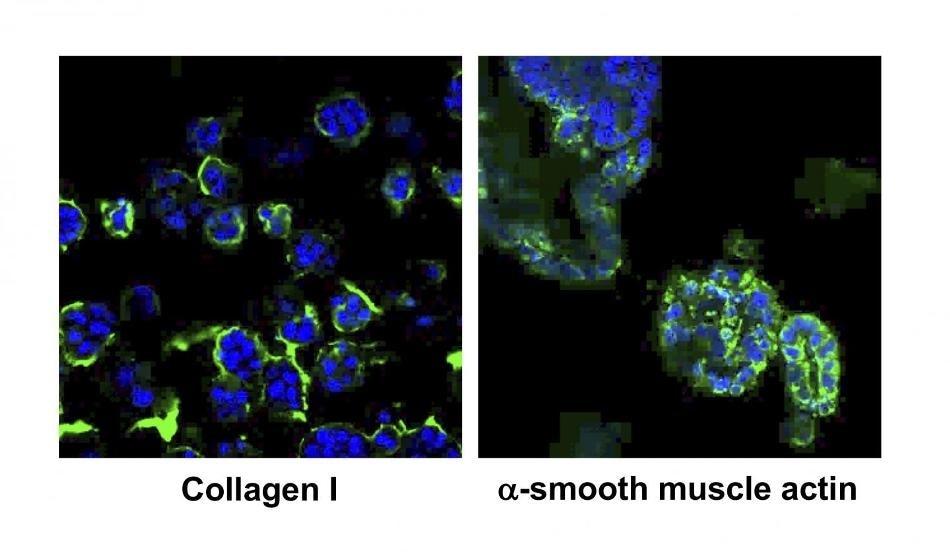Researchers develop 3D cultured cells that mimic liver fibrosis