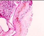 New Type Of Immune Cell Discovered In Breast Ducts