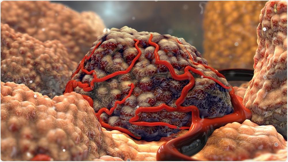 Tumor Cell