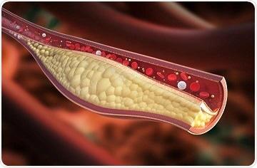 Study reveals new gene that regulates cholesterol levels