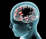 Subtypes in alzheimer's disease may be linked to tau protein modifications