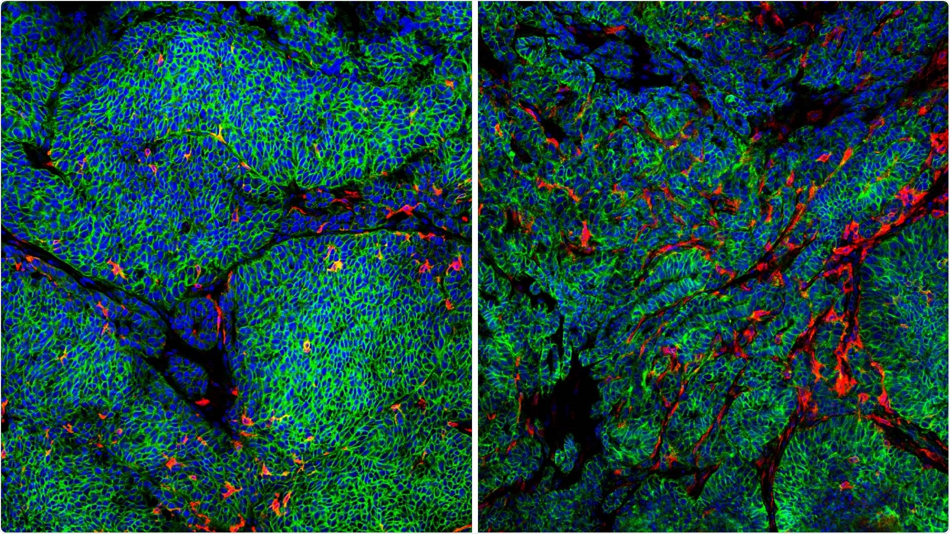 Study shows how breast cancer cells escape the immune system