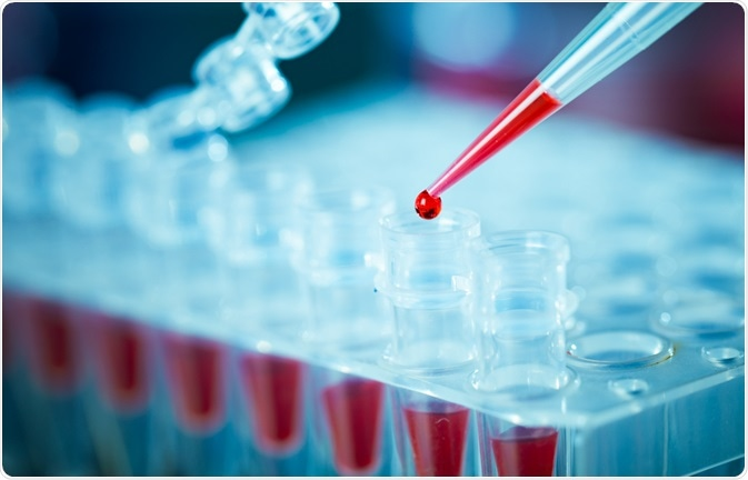PCR DNA Analysis