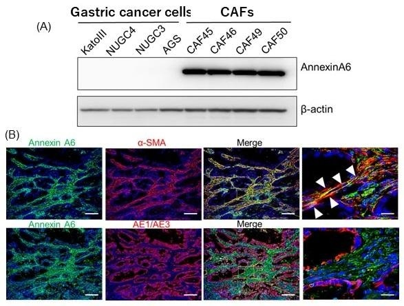 Study shows Annexin molecule promotes resistance to anticancer drugs