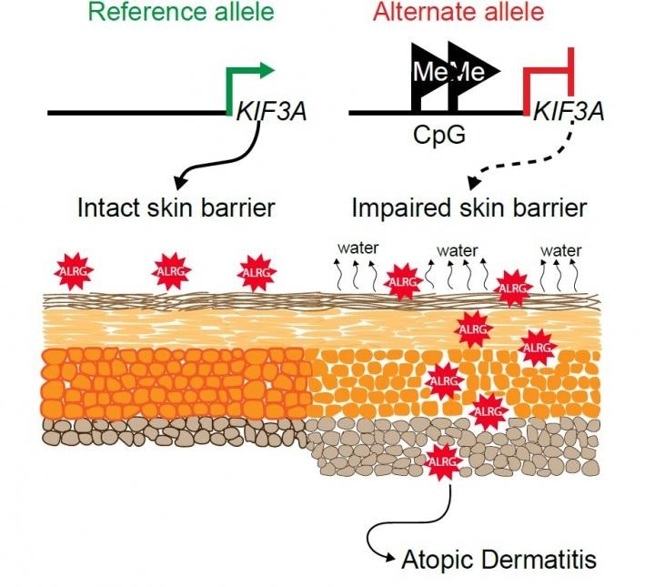 Study sheds light on genetic and molecular mechanisms involved in atopic dermatitis