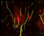 Researchers identify brain protein that leads to seizures, abnormal social behaviors