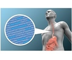 Researchers develop statistical model that predicts risk of developing esophageal cancer
