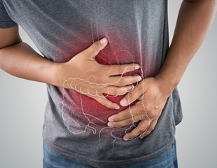New model can help identify potential drug targets for ulcerative colitis