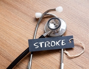 Researchers discover genetic risk factor for stroke