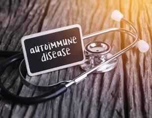 Researchers identify key molecule involved in immune regulation