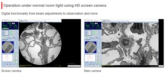The HT7800: A Versatile Transmission Electron Microscope