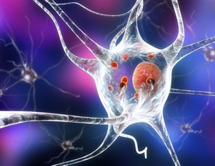 Scientists identify mystery protein that explains the origins of Parkinson's Disease