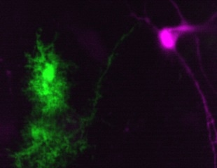 Synthetic cannabinoid reduces essential tremors by activating astrocytes